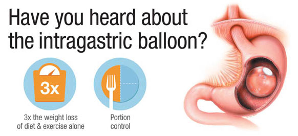 IntragastricBalloonGraphic